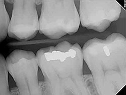Young Truckee Pediatric Dentistry patient teeth under digital  x-ray